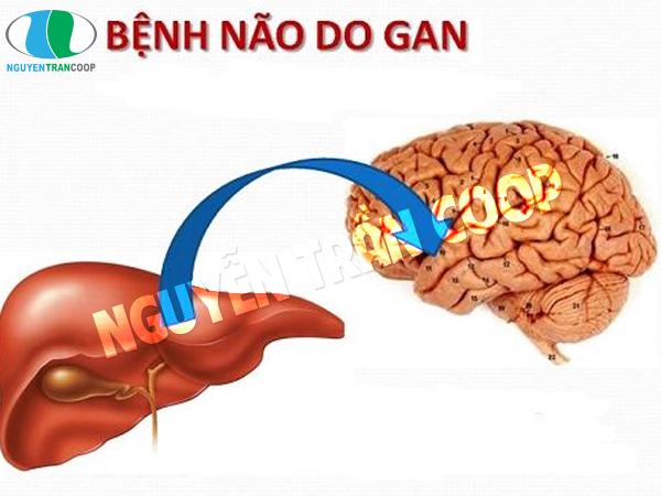 Nguy hiểm không ngờ từ bệnh não gan (hôn mê gan)