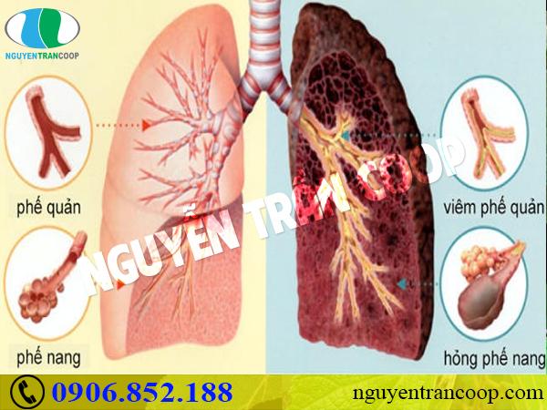 Không chỉ hại phổi, hút thuốc lá còn gây bệnh gan